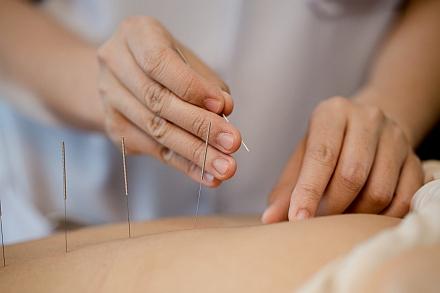 """Akupunktur – """"Notfallpunkte"""" – das Geheimnis der Gesundheit und Langlebigkeit einer  Frau"""