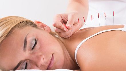 Akupunktur – Praxistipps bei Erkältungen